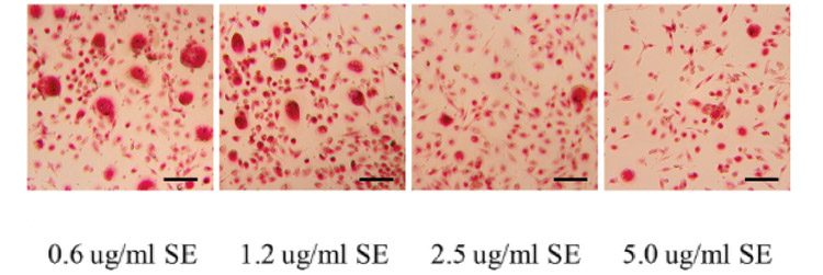 55  sesamin and macrophage